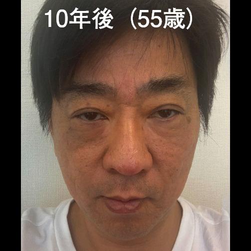 眉間 after