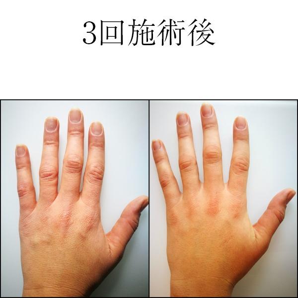 ミラノリピール3回施術後手指のイメージ