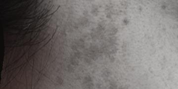 シミ・ソバカス・ 肝斑