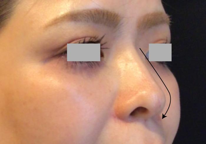 鼻のヒアルロン酸注入アフター