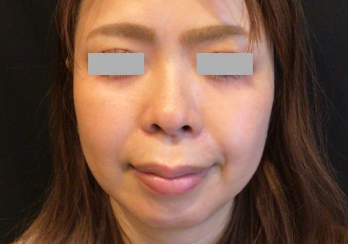 鼻のヒアルロン酸注入ビフォー2