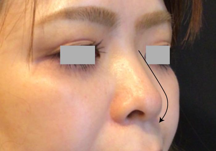 鼻のヒアルロン酸注入ビフォー