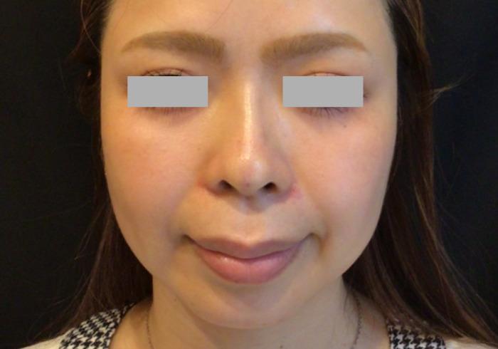 鼻のヒアルロン酸注入アフター2