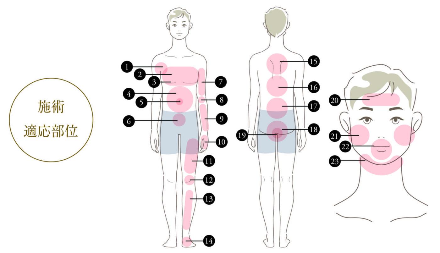 男性医療脱毛 施術適応部位