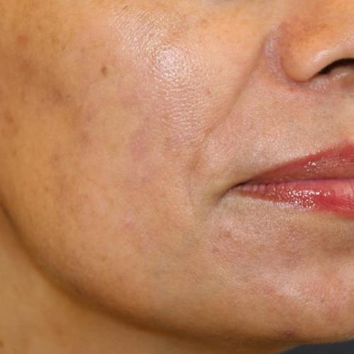 頬のシミ after