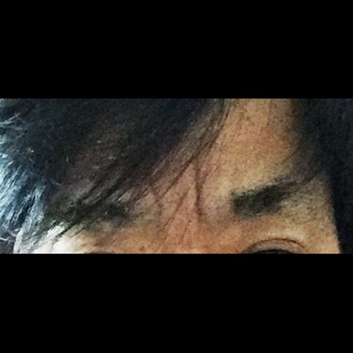 眉間 before