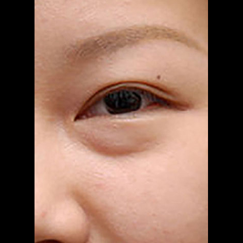 目の下のくぼみ before