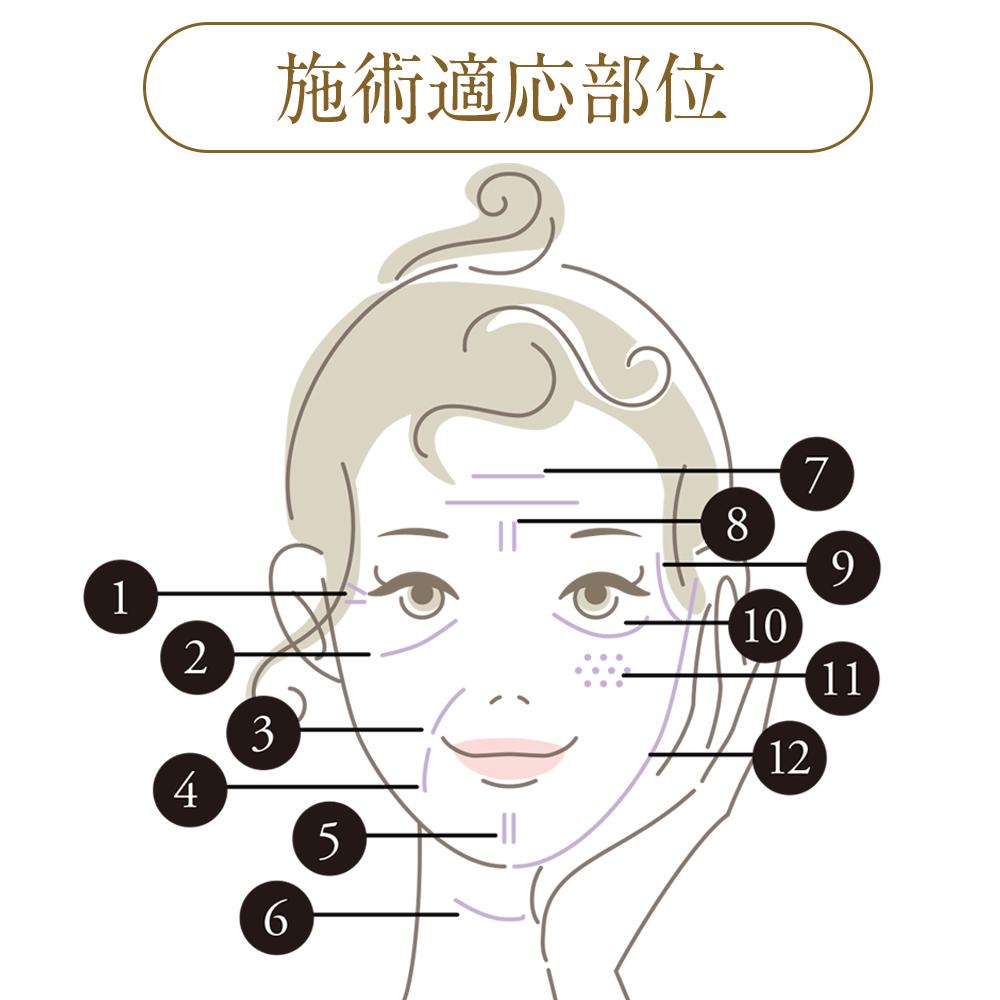 PRP皮膚再生療法_施術適応部位