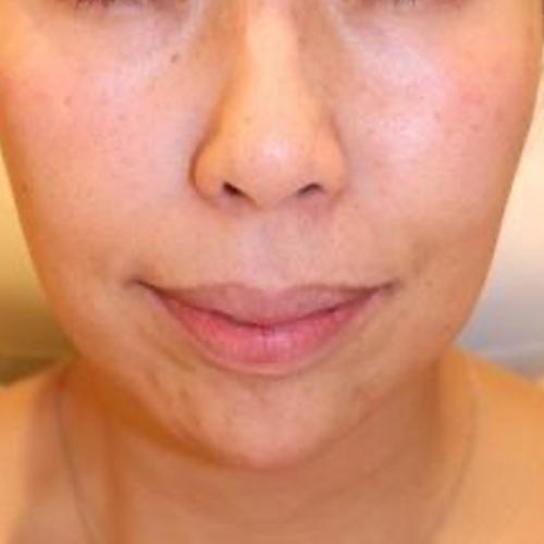 目の下、ほうれい線、こめかみ、顎 after