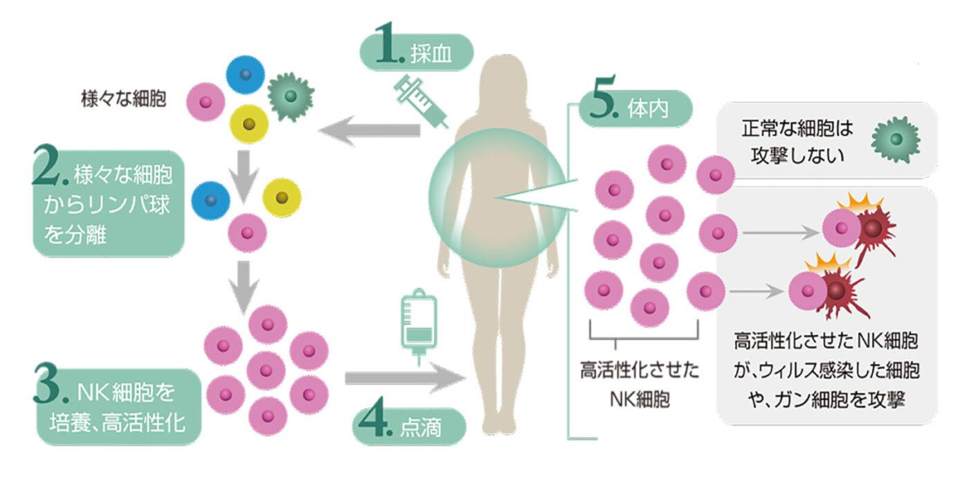 NK細胞療法_説明画像