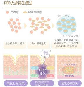 PRP皮膚再生療法_説明画像