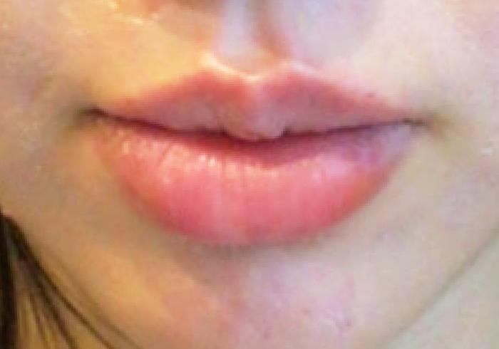 唇のヒアルロン酸注入アフター