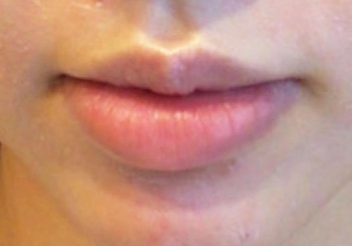 唇のヒアルロン酸注入ビフォー