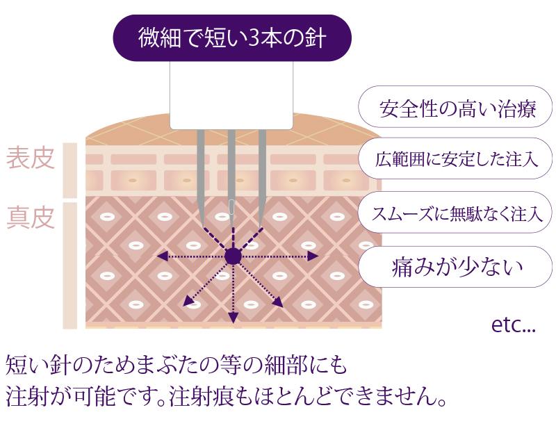 低侵襲マイクロ注射針イメージ