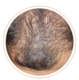 ACRS男性頭皮施術前