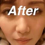 AFTER-PRP皮膚再生療法エラ写真
