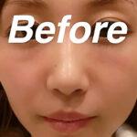 BEFORE-PRP皮膚再生療法エラ写真