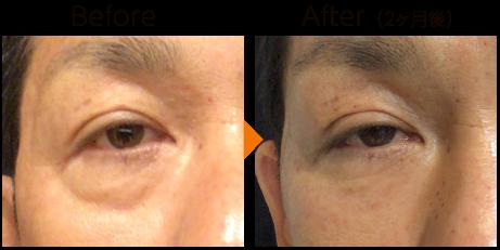 目元の肌再生