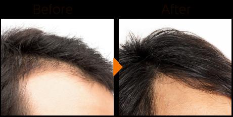 毛髪再生療法(頭皮育毛・薄毛治療)は、お顔全体のリフトアップにも効果あり PRPによる毛髪再生療法は、男性・女性に関わらず発毛・育毛・薄毛でお悩み