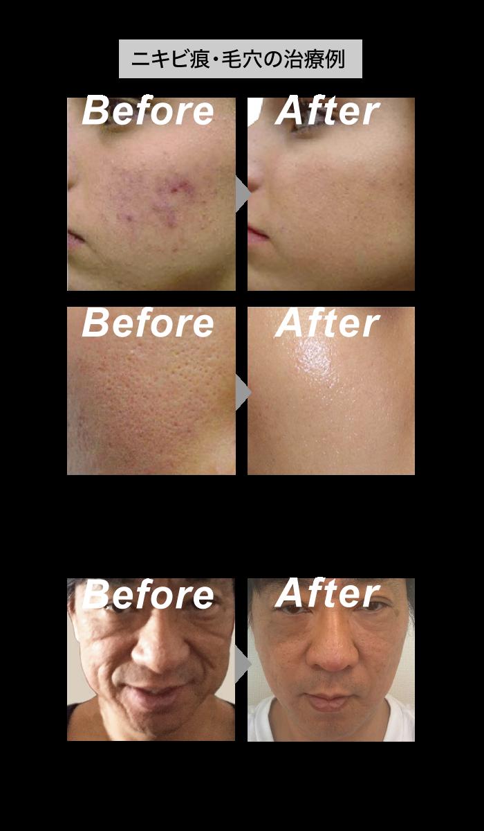 ニキビ痕・毛穴の治療例