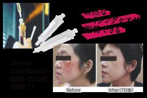 ACRSは自然なエイジングケアが期待できる。ニキビ、ニキビ痕、皮膚トラブルの改善に。ピラミッド施術。